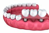 3d lower teeth and dental implant isolated on white — Stock Photo