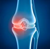 Knee problem, x-ray view — Stock Photo