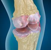 Osteoporosis of the knee joint — Stock Photo