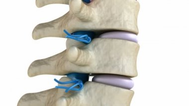 Spinal cord under pressure of bulging disc — Stock Video