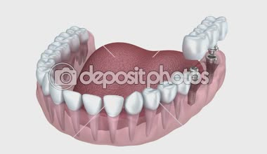 A close-up view of lower teeth and dental implants isolated on white — Stock Video