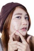 Teen girl pressing her pimple — Stock Photo