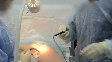 Chirurgen team bewerking. — Stockvideo