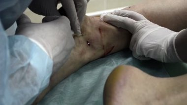 Medical injection patient leg — Stockvideo