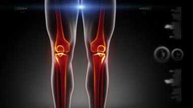 Human knee medical scan — Stock Video