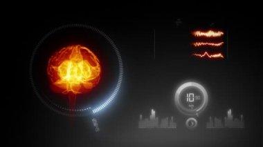 Medical scan of human brain — Vídeo de stock