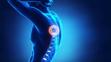 Backbone pain problem — Stock Video