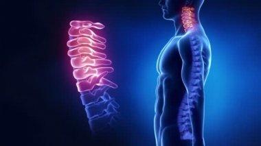 Région cervicale de la colonne vertébrale — Vidéo