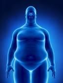Obesity concept — Stock Photo