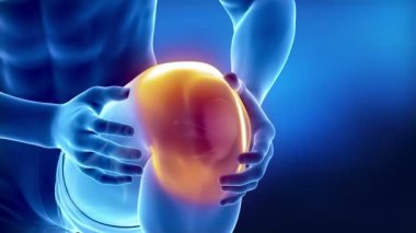 Pain in knee — Stock Video