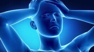 Migraine head pain concept — Stock Video