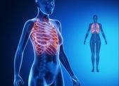 RIBS x--ray bones scan — Foto de Stock