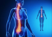 Female body with SPINE bone scan — Стоковое фото