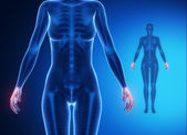 Pols anatomie x-ray botscan — Stockfoto