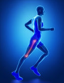 Running man with leg scan — Stock Photo