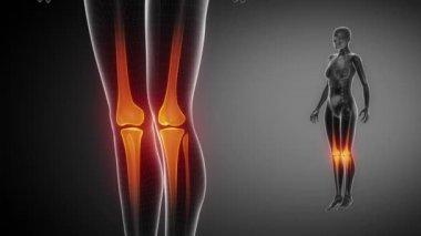 KNEE  bone skeleton x-ray scan in black — Stock Video