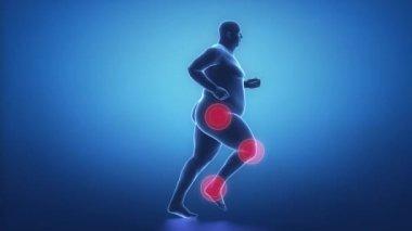 Obesity man sport joints problem — Wideo stockowe