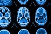 CT and MRI of skull — Stock Photo
