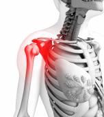 Human shoulder pain artwork — Stock Photo