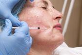 Traitement cosmétique avec l'injection de botox — Photo