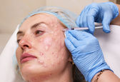 Cosmetic treatment with botox injection — Stock Photo