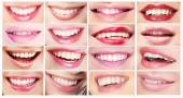 Lipsticks. Set of Women's Lips. Toothy Smiles — Stock Photo