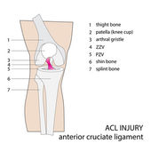 ACL injury — Stock Vector