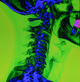 Cervical spine X-Ray in color — Stock Photo