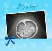 Echography for baby — Stock Photo