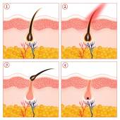 Permanent hair removal — Stock Photo