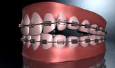 Creepy Teeth With Braces — Stock Photo