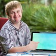 Friendly boy with down syndrome pointing at blank laptop screen. — Stock Photo #62329905