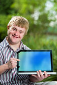 Handicapped boy pointing at blank laptop screen. — Stock Photo