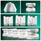 Compilation picture of dental study models — Stock Photo