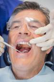 Patient mouth open and dentist examining — Stock Photo