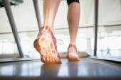 Highlighted foot bones of jogging woman — Stock Photo