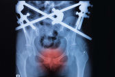 Fracture pubic symphysis with external fixation — Stock Photo