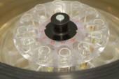 Centrifuge blood and urine testing — Stock Photo