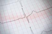 Eletrocardiograma — Foto Stock