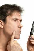 Men squeezing a pimple — Zdjęcie stockowe