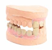 Denture isolated on white — Stock Photo