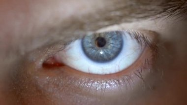 Blue eye with contact lens. — Stockvideo