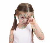 Criança tem o vírus na pele — Fotografia Stock