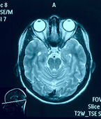 Real brain MRI slide of a young woman. Patient's and clinic's na — Stock Photo