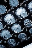 Head MRI scan, anonymized — Stock Photo