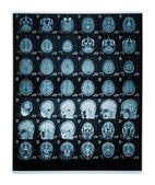 Real brain MRI slide of a young woman — Stock Photo