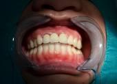 All ceramic bridge of anterior upper teeth — Stock Photo