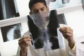 Dottore guardando le radiografie — Foto Stock