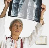 Senior Asian female doctor looking at x-rays — Stock Photo