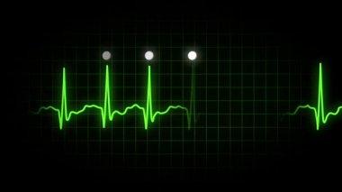 EKG Monitor Screen — Stock Video